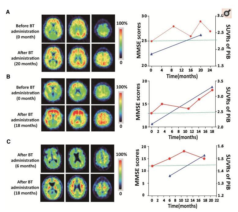 Comparison charts: benfotiomine